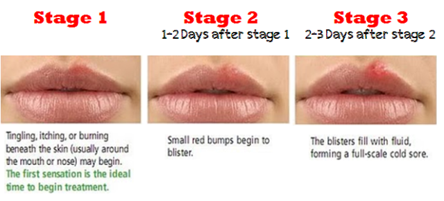 cold-sore-stages